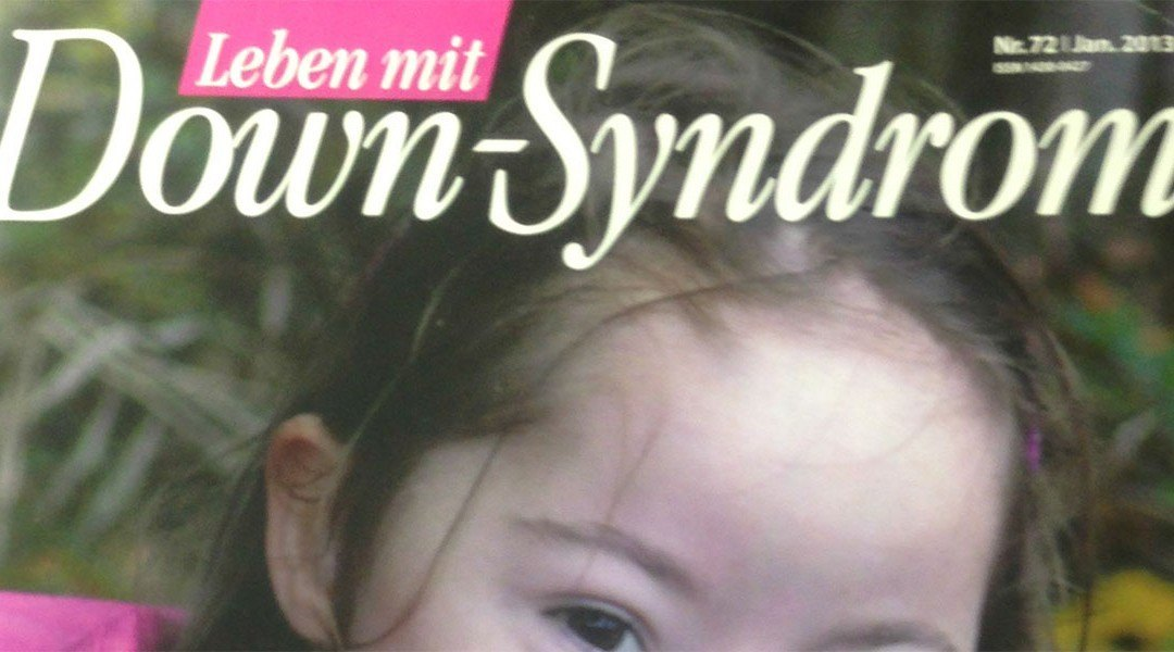 Keratoconus and Down Syndrome (Article in german)